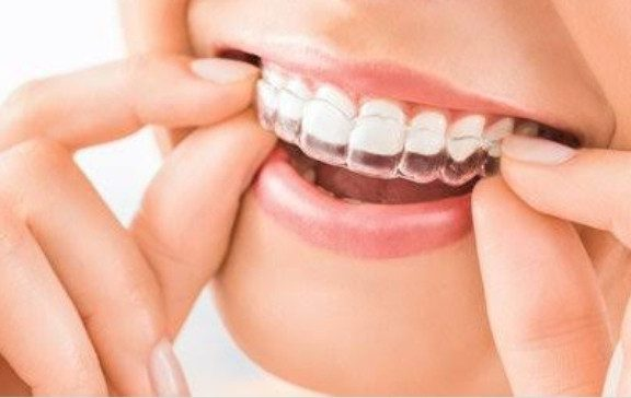 Can Invisalign permanently fix your teeth?